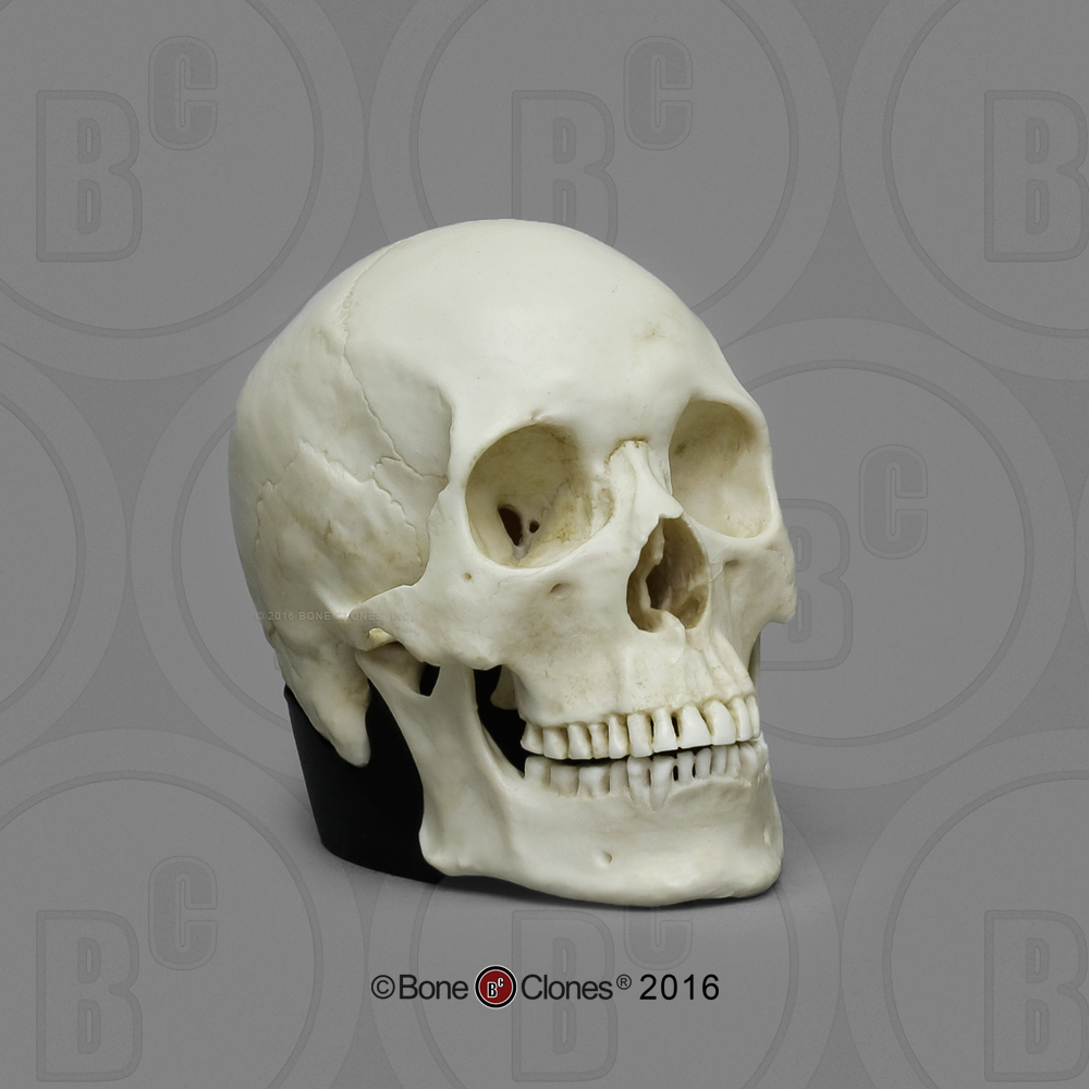 Skull Design and Brainstem Compression Alzheimer's, Parkinson's.