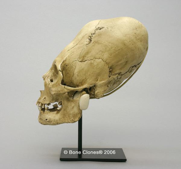 http://www.boneclones.com/images/bc-200-lg_web.jpg