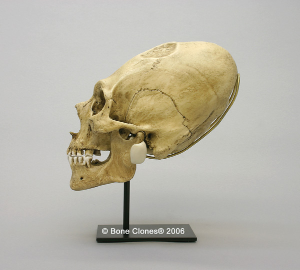 http://www.boneclones.com/images/bc-201-lg_web.jpg