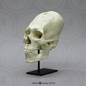 Human Peruvian Male Skull with Cranial Binding and Trephination
