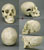 Human Female Skull with Multiple Gunshot Wounds Replica
