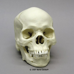 Human Male African-American Skull BC-203