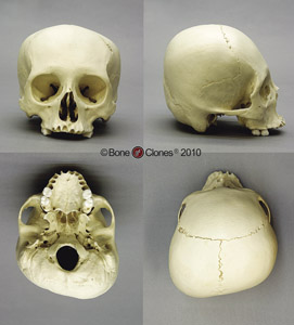 Human Adult Cradle-boarded Skull BC-222