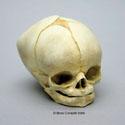 Fetal Human Skull 40 1/2 Weeks BC-228