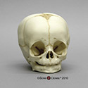 4-month-old Human Child Skull BC-256