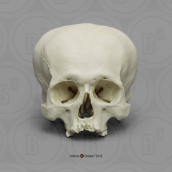 Human Male, Cranial Deformation BCH-810