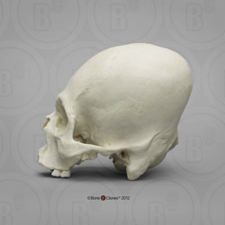 Human Male, Cranial Deformation side View BCH-810