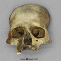 Human Female Partial Skull with Cribra Orbitalia BCH-813