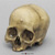 Human Female Skull with Button Osteoma BCH-814