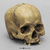 Human Male Skull with Porotic Hyperostosis BCH-815