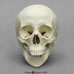 Human Female Skull with Down syndrome