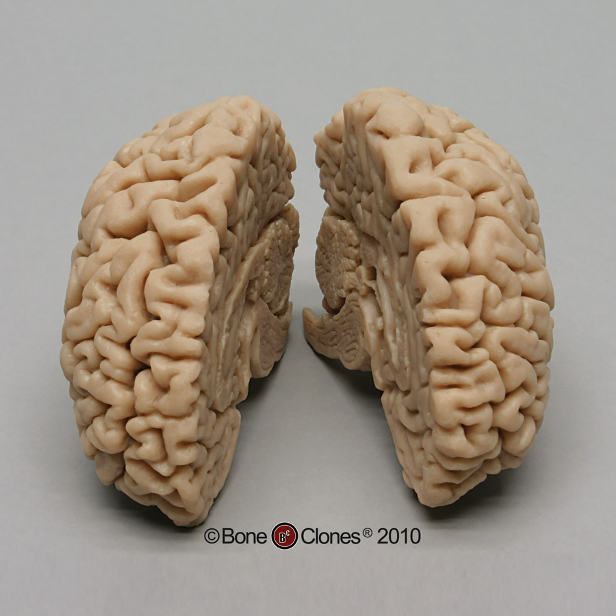 human brain Bigger brains: complex brains for a complex world endocasts of homo erectus (left) and homo sapiens (right) illustrate rapid increase in brain size.