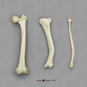 Human Femur, Tibia and Fibula, Rickets Pathology