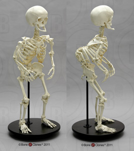 Human Female Achondroplasia Dwarf Articulated Skeleton SCD-279-A