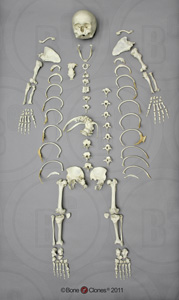 Human Female Achondroplasia Dwarf Disarticulated Skeleton SCD-279-D