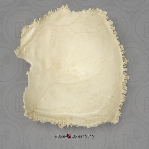 Natural Bone Real Human Parietal Bone
