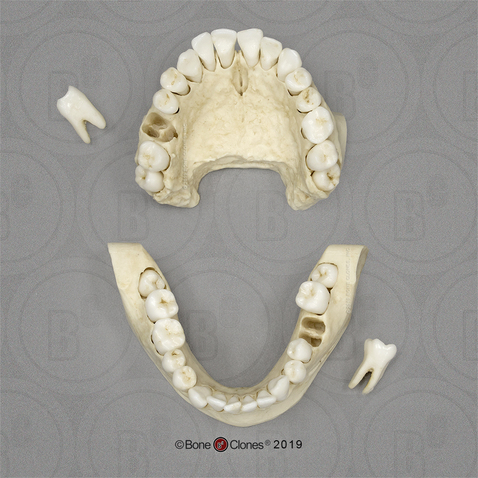 Human Female Teeth, Removable on Partial Mandible and Maxilla