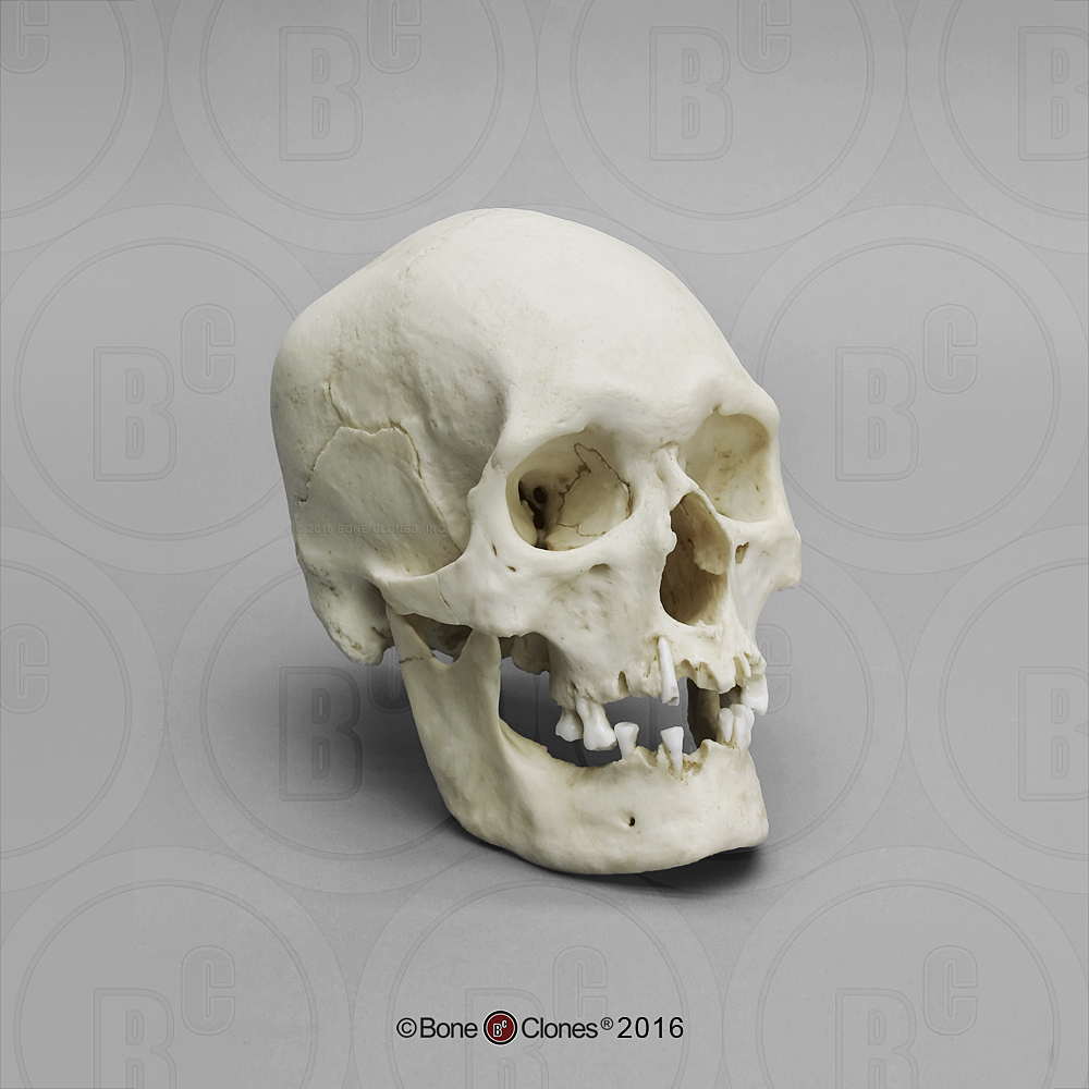 Human Male Polynesian Skull - Bone Clones, Inc. - Osteological ...