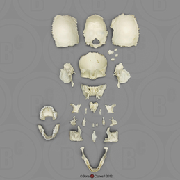 Disarticulated Human Medical Study Skull