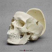 Human Male European Skull with Calvarium Cut