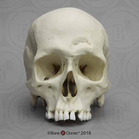 Adult Male Human Skull with Hammer Wounds
