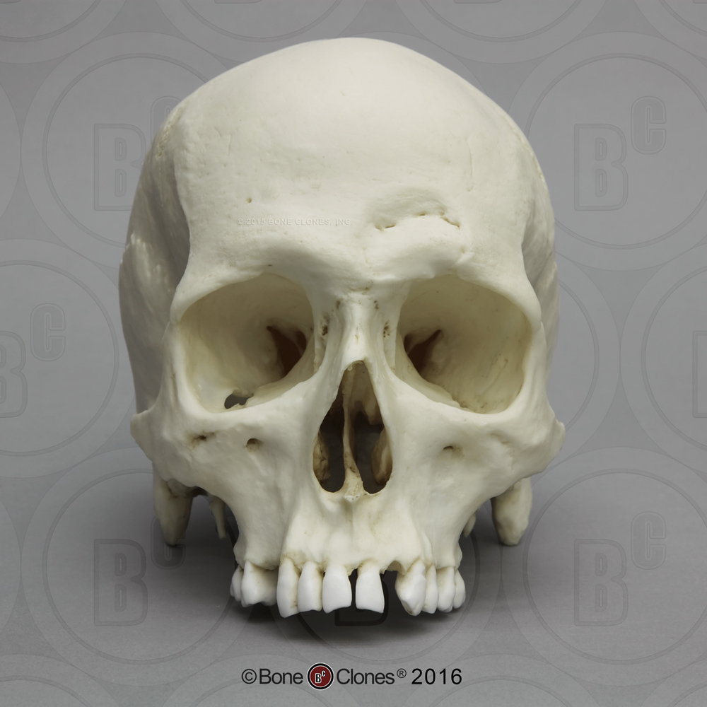 human male skull with a 32-caliber gunshot wound - bone clones, Human Body