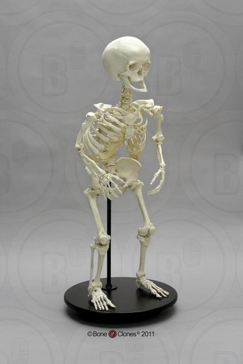 human female achondroplasia dwarf skeleton, articulated - bone, Skeleton