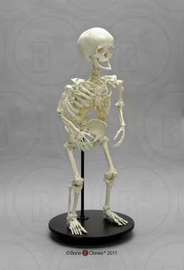 Human Female Achondroplasia Dwarf Skeleton, Articulated