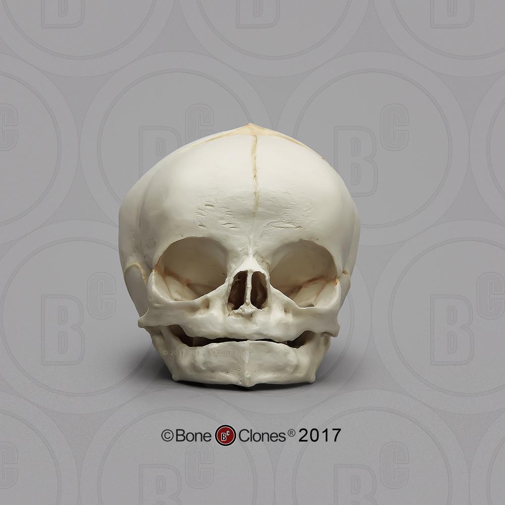 Cráneo recién nacido  - vista frontal