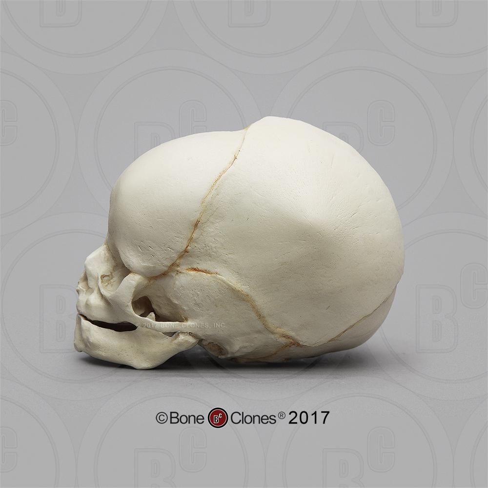 Cráneo recién nacido- vista lateral de perfil