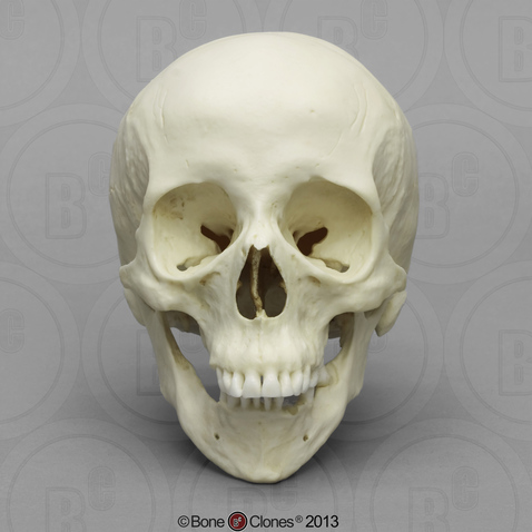 Human Female Skull with Down Syndrome - Bone Clones, Inc ...