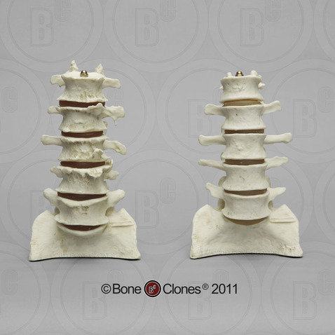 Comparative Lumbar Vertebra Display Set of 10 (Arthritic and Normal)