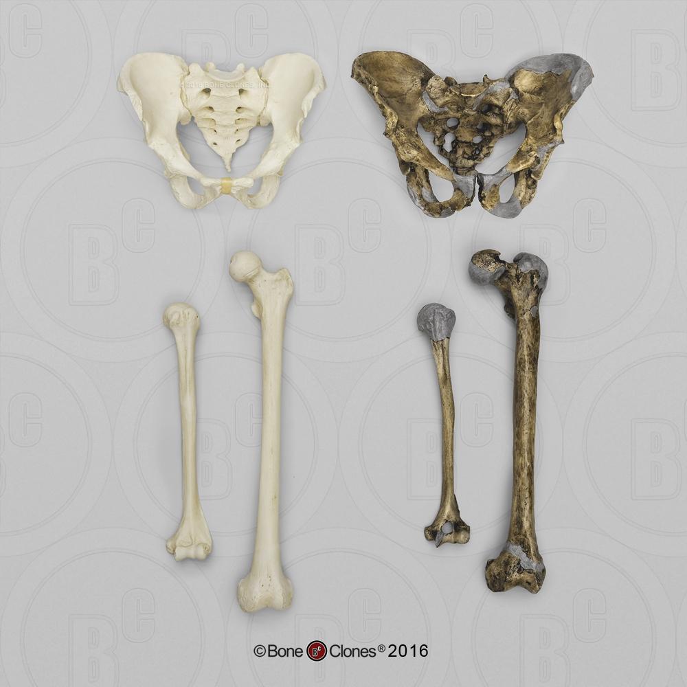 Neanderthal and Modern Homo sapiens Comparative Set - Bone Clones ...