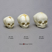 Human Fetal Skulls Set of 3