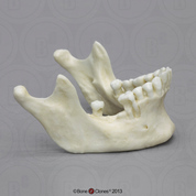 Human Male Mandible with Dental Abscessing
