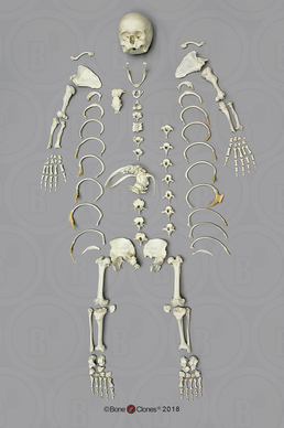 Human Female Achondroplasia Dwarf Skeleton, Disarticulated