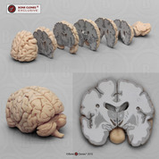 Human Brain Multiple Frontal Sections