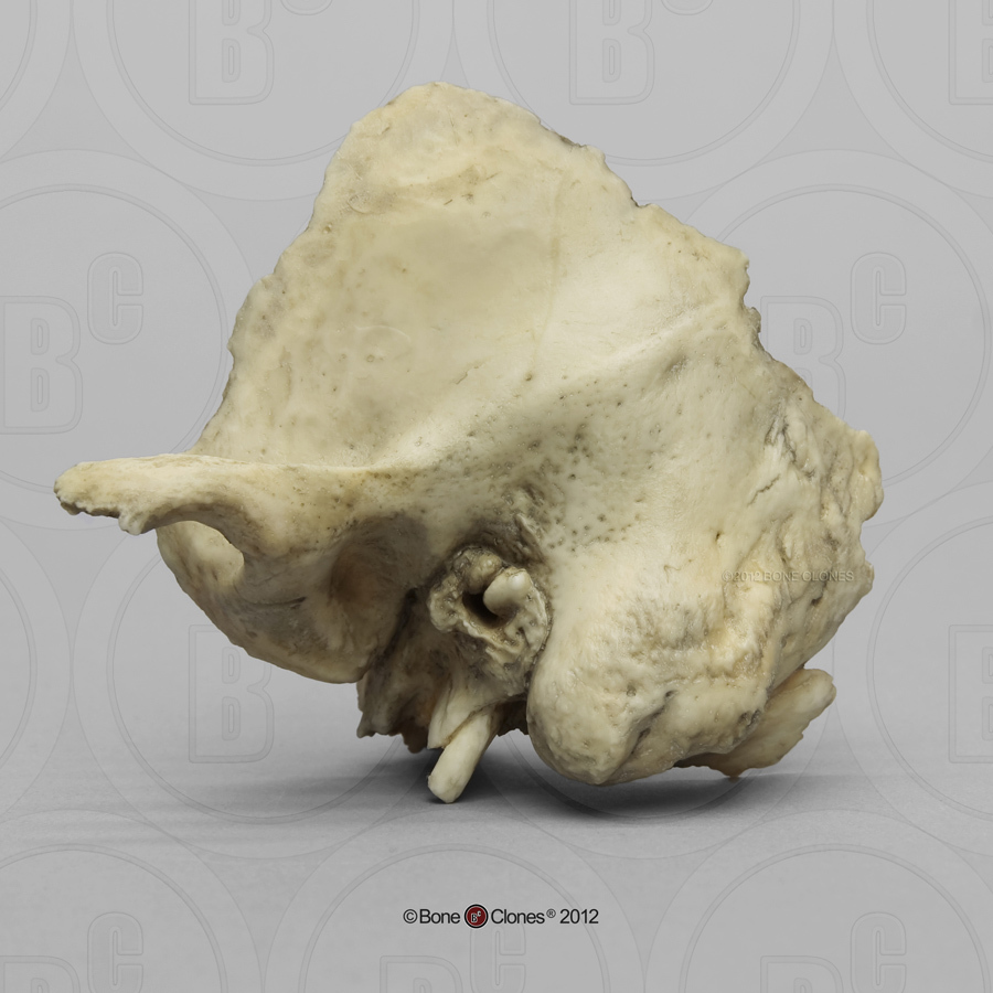 Human Left Temporal Bone, Auditory Exostosis - Bone Clones, Inc ...