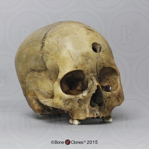 Human Female Cranium with Sling Shot Wound