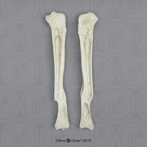 Human Tibia Fracture with Sagittal Cut - Bone Clones, Inc ...