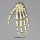 Human Female Achondroplasia Dwarf Hand, Semi-articulated
