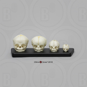 Human Fetal Skulls Set of 4 with Lesson Plan