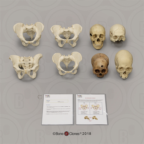 Forensic Anthropology K 12 Set Sex Estimation Bone Clones Inc Osteological Reproductions