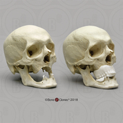 Human Skull for Facial Reconstruction, With Photo History