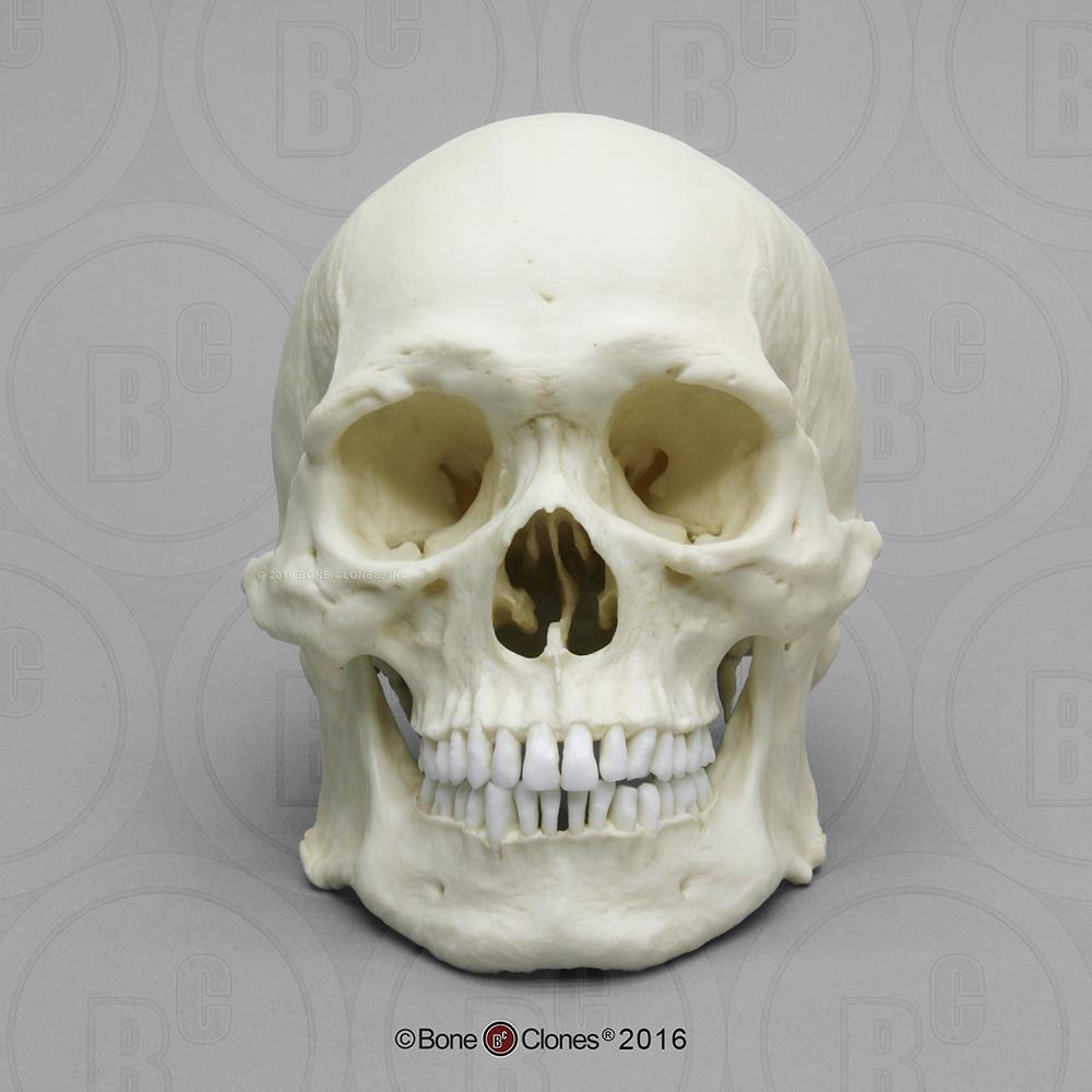 Human Male Asian Robust Skull Bc 287 Bone Clones Inc