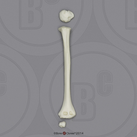 5-year-old Human Child Humerus, Disarticulated
