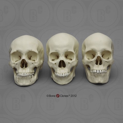 Human Female Skulls: African, Asian, and European