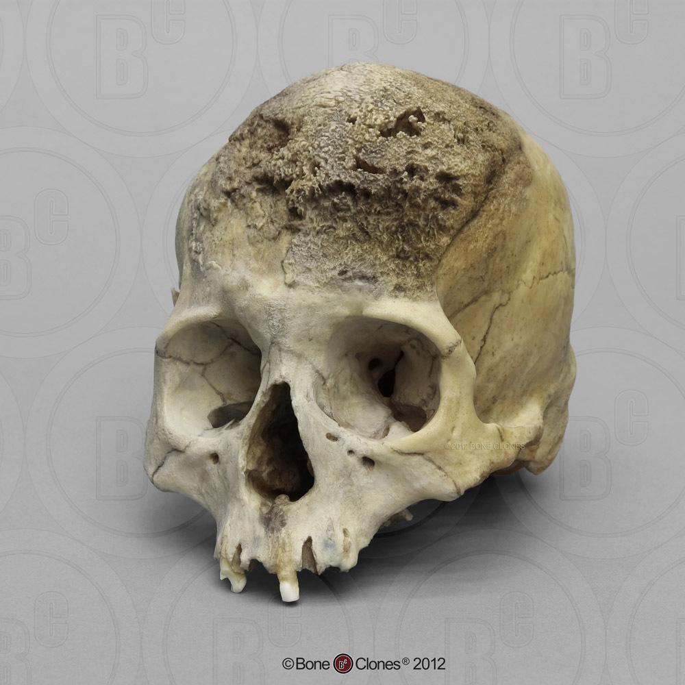 Human Female Skull, Meningioma - Bone Clones, Inc -9675