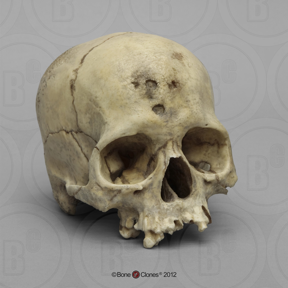 human male asian skull - bone clones, inc. - osteological, Human Body