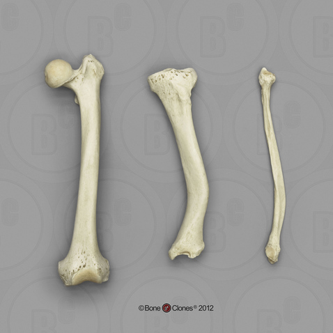 Human Femur, Tibia and Fibula, Rickets